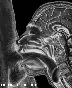 Deepthroat x-ray